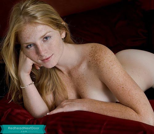 freckle lover 5