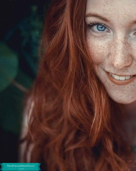 freckle lover 1
